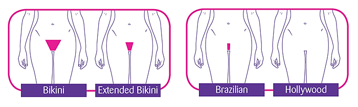 Extended bikini wax — photo 3