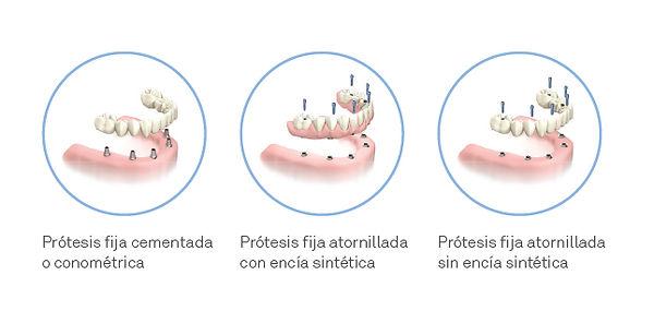 protesis_dentalpro_fijas.jpg
