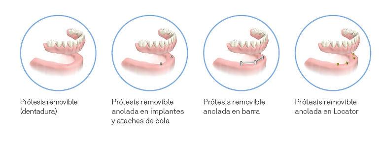 protesis_dentalpro.jpg