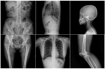 radiographie.jpg