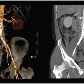 angio-scan-2.jpg