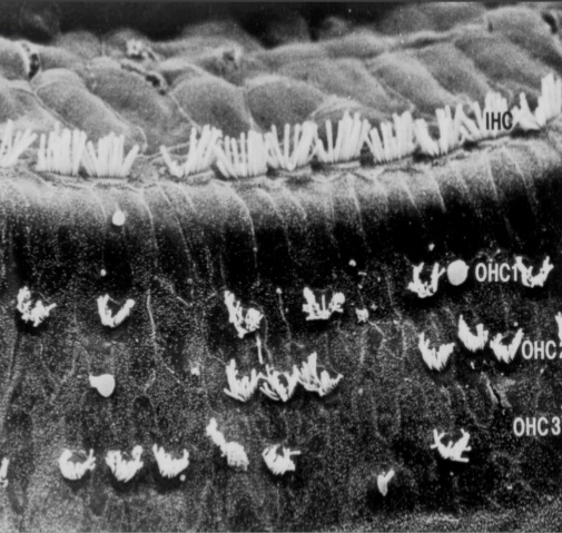 Microscopic View of Damaged Hair Cells