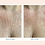 Thumbnail: Wrinkles Schminkles Chest, Decollete and Decolletage Pads