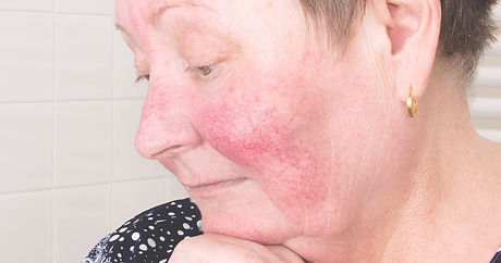 woman-rosacea-cheeks.jpeg