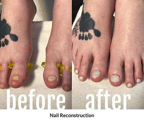 nailreconstruction2_edited.jpg