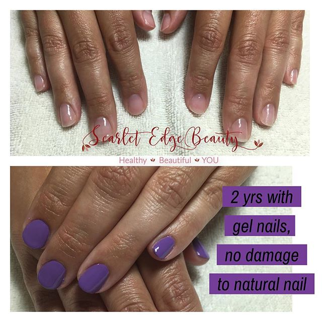 Gel nail removal