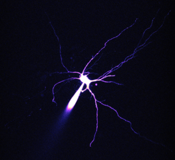ICneuron_edited_edited.png