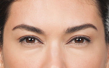 Moderate to severe frown lines 7 days after Botox treatment