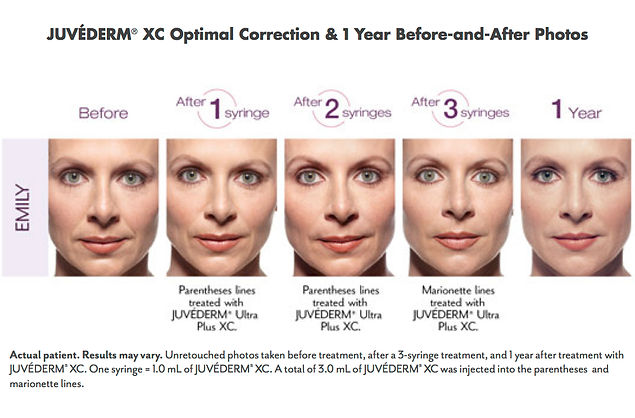 Juvederm XC treatment for lines an wrinkls 1 Year Before and After Photos