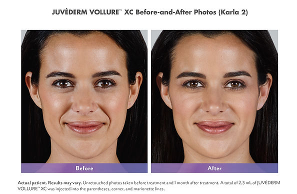 Juvederm Vollure XC after 18 months before and after lines and wrinkles