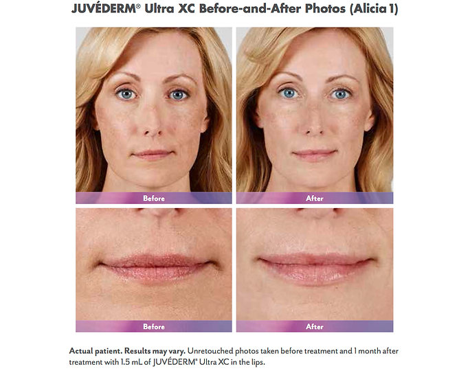 Juvederm Ultra XC Fills Lips to Plump and add fullness Before and After