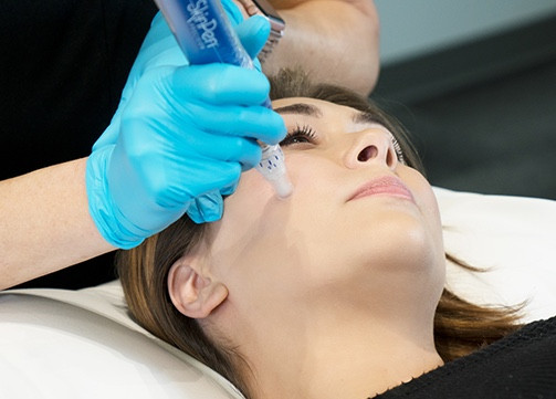 Ronda Foley Face Time, SkinPen for fine lines and wrinkles
