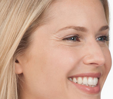 See the difference Before Botox treatment for moderate to severe crow's feet