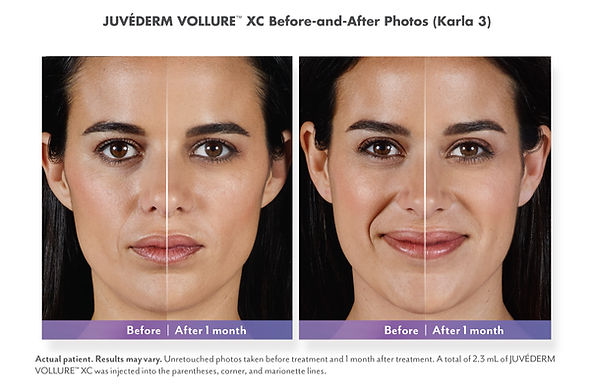 Juvederm Vollue XC Before and After 1 month lines and wrinkles, gel filler, injections