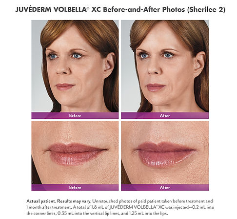 Juvederm Volbella XC Before and After Lips, Fill and Smooth