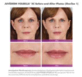 Juvederm Volbella XC Before and After Lip Fill and Smooth
