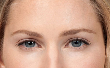Modeate to severe frown lines after Botox Treatment
