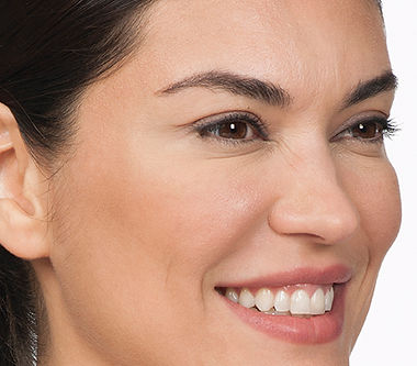 moderate to severe crows feet before Botox Cosmetics