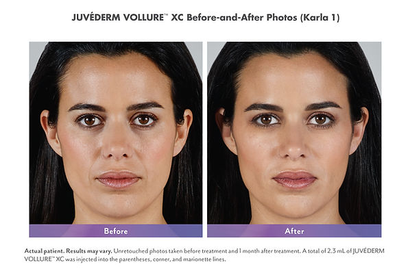 Juvederm Vollure before and after fine lines and wrinkles