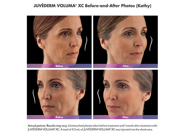 Juvederm Voluma XC adds volume to Cheek Area Befor and After 1 month