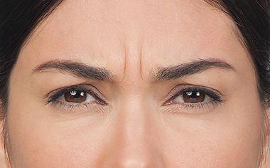 Moderate to Severe frown lines, Before Botox Cosmetics
