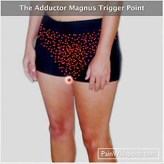 The Adductor Magnus Trigger Point refers pain to the pelvis and genitalia.