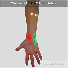 The wrist flexor trigger points that refer pain to the inside of the wrist.