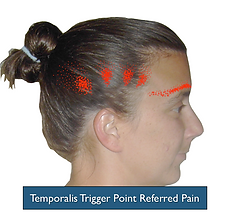 The Temporalis trigger points refer pain to the side of the head and over the eyebrow region.