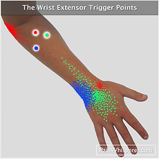 The wrist extensor trigger points refer pain to the back of the wrist and weaken the grip.