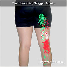 The Hamstring trigger points refer pain to the back of the thigh, back of th knee, and lower gluteal regions.