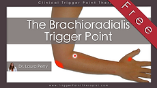 The Brachioradialis trigger point video.