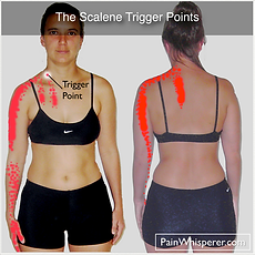 The Scalene trigger points produce chest pain, upper back pain, pain down the outside of the arm, wrist pain, and thumb pain and index finger pain.