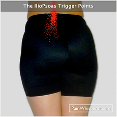 The ilio-psoas trigger point refers pain in a vertical pattern alon one side of the lumbar spine down to the sacroiliac joint.