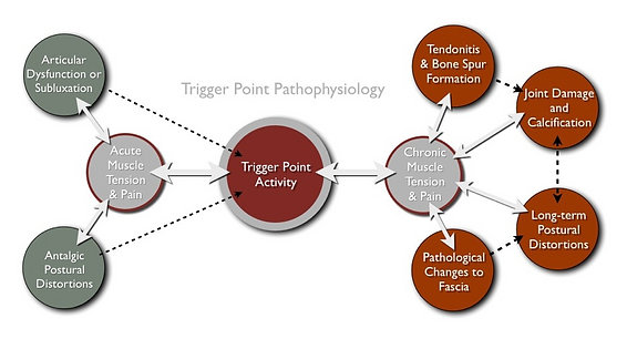 trigger point pathophysiology flow diagram
