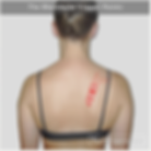 The Rhomboid trigger points refer pain along the inside edge of the shoulder blade and mid-back region.