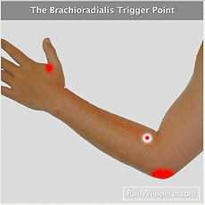 The Brachioradialis trigger point refers pain to the outside of the elbow, the forearm, and to the base of the thumb.