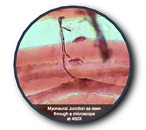 myoneural junction under microscope