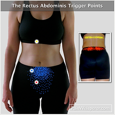 The Rectus Abdominis trigger points refer pain to the pelvis, low back, and mid-bck regions.