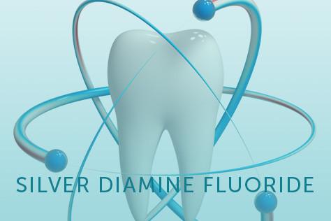 Silver Diamine Flouride