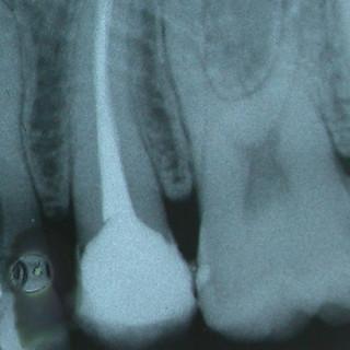 Endodonzia di premolare superiore
