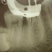 Endodonzia di dente vitale