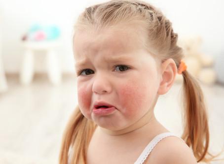 Kinder und Allergien