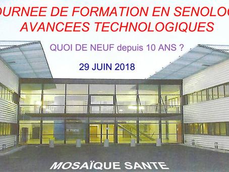 Une journée de formation à Blois en sénologie le 29 juin 2018