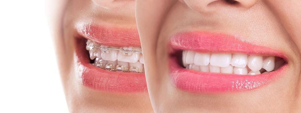 aligner-braces.jpg