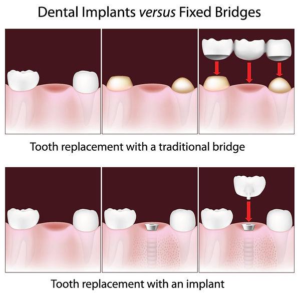 implantdiagram.jpg