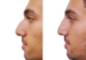 ba-filler-nose-male1.jpg