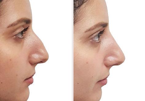ba-filler-nose-fem3.jpg