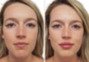 ba-filler-fullface-fem1.jpg