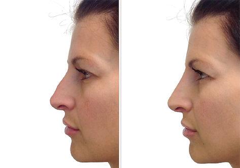 ba-filler-nose-fem1.jpg