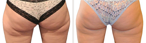 ba-coolsculpting-thighs1.jpg